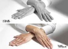Kézfej és kar ránctalanítása hyaluronsavval