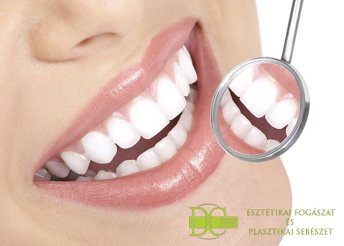 Fogpótlás dentium fogászati implantátummal