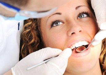 Teljes körű fogászati szűrés 2 főnek