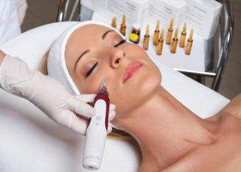 4 alkalom kollagénes mezoterápiás arckezelés