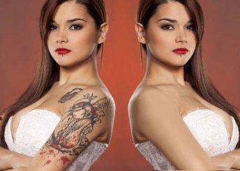 Tetoválásod eltüntetése vagy javítása