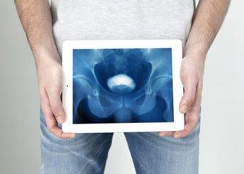 Megelőző urológiai szűrés férfiaknak