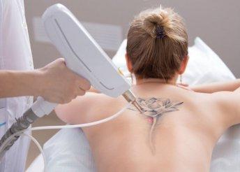 YAG- lézeres tetováláseltávolítás